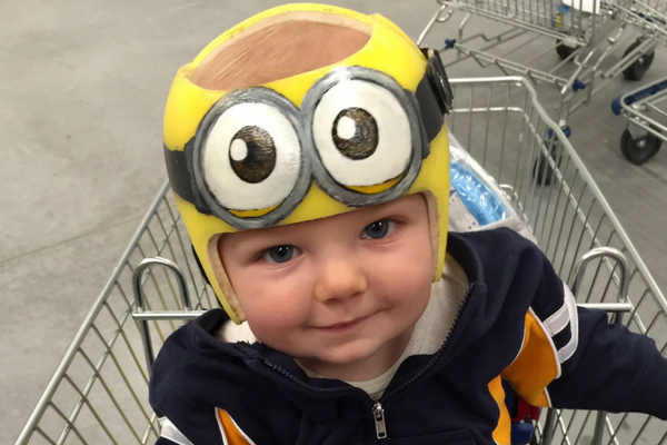 Baby Needs A Helmet 13 Things You Need To Know